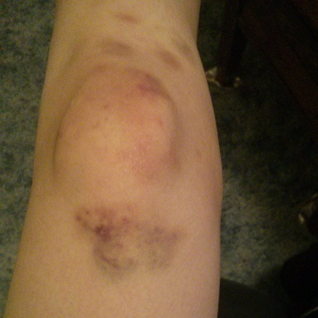 a photo of laurel green's severely bruised knee