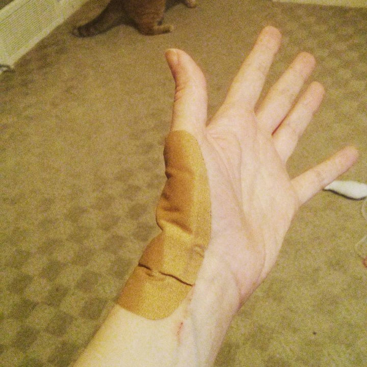photo of a hand with a large bandage on the wrist