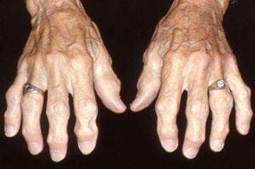 Узелки гебердена и бушара лечение народным способом. Узлы Гебердена: лечение и профилактика