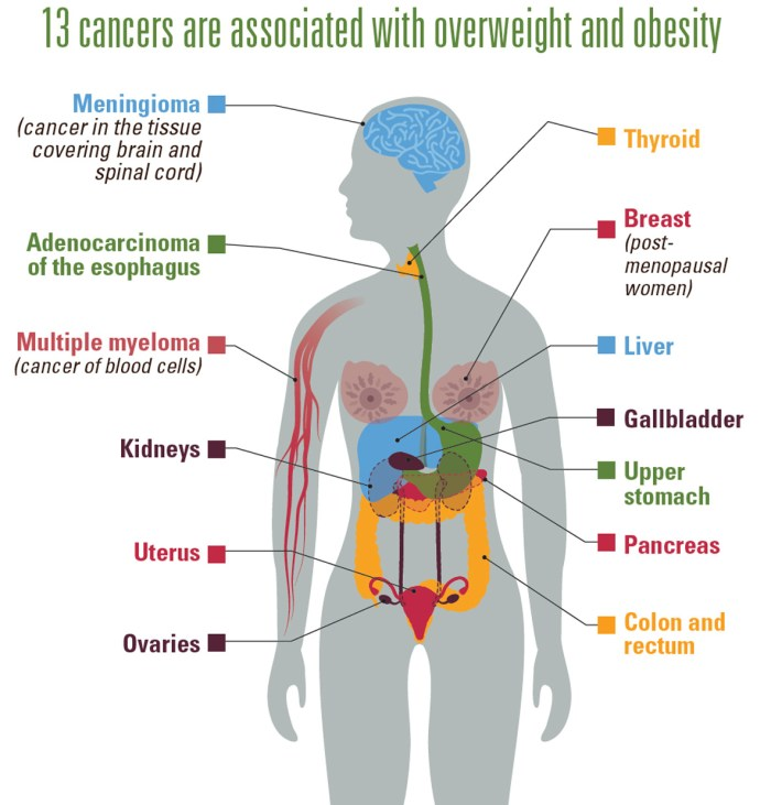vs-1017-Obesity-Cancer-1184px-v3