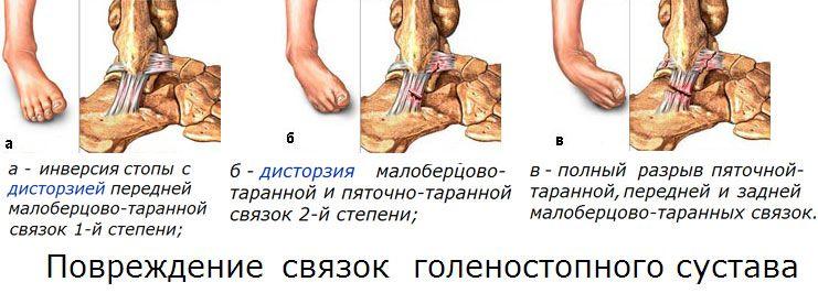 Узнаем почему могут болеть кости ног от колена до ступни