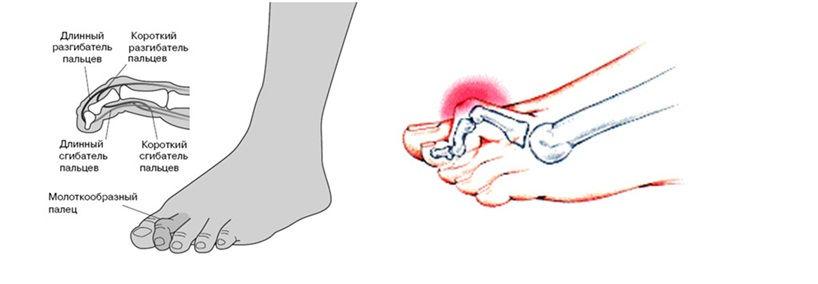 Как выпрямить пальцы на ногах большой мизинец первый и второй фото