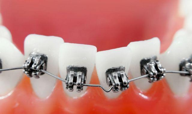 Последствия сепарация зубов