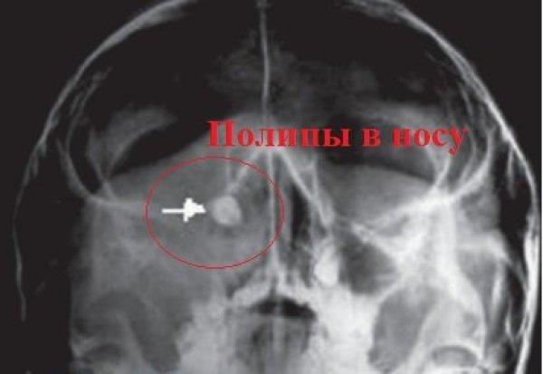 Диагностика - рентген снимок