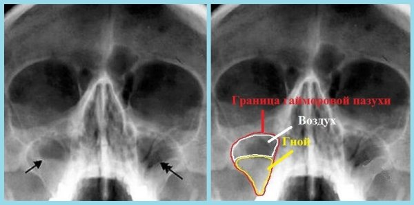 Диагностика гайморита с помощью рентгена