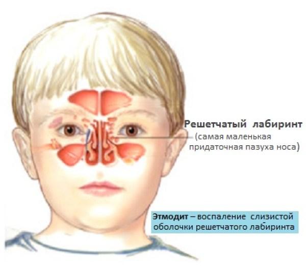 Что такое этмоидит у детей