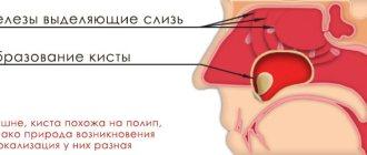 Все способы лечения кисты верхнечелюстной пазухи