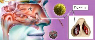 Правильное лечение полипозного синусита – описание и симптомы