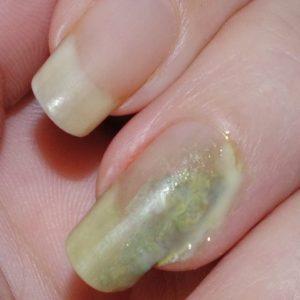 mycose, onychomycose, nail art fx, pu, purulent