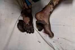 VARANASI, INDIA – NOVIEMBRE 28, 2009: Los pies quemados de Utma quedan al descubierto mientras descansa en la unidad de quemados. Llegó al hospital con quemaduras graves en el 100% de su cuerpo tras ser bañada en kerosene, como castigo a su familia por no pagar la dote que su familia política exigía. El nombre del hospital no puede ser dado para proteger a las personas que me permitieron ingresar a la unidad de quemados. Walter Astrada/Alexia Foundation
