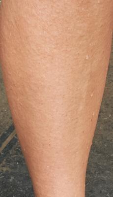 Pierna con la piel erosionada por haber subido el montículo lleno de zarzas y pinchos.