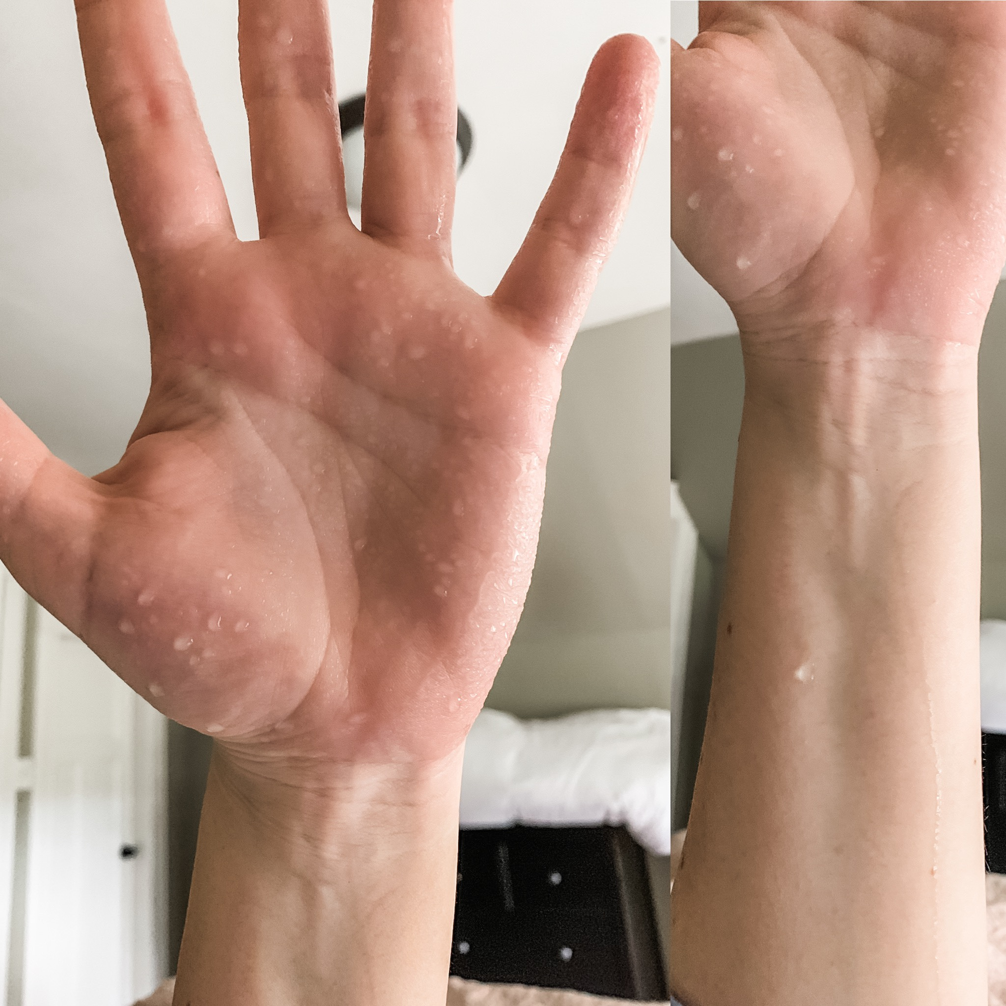 Hyperhidrosis Hand