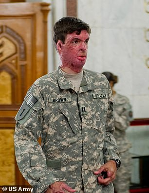 He was severely burned by an IED device in 2008 during his first deployment to Afghanistan