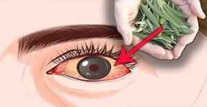 It Fights Glaucoma (Eye Pressure)