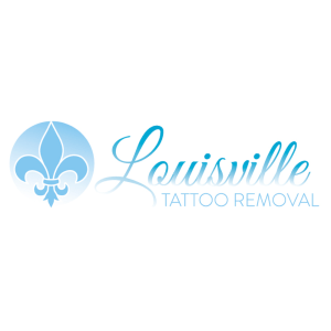 louiseville tattoo removal national tattoo removal day