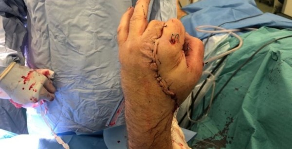 Carpenters hand repaired after 17 hours of surgery