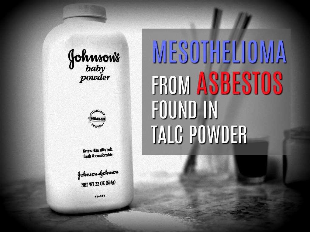 Johnson & Johnson Found To Have Knowingly Allowed Asbestos In Their Baby Powder