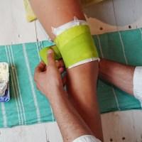 Bei Prellungen und Entzündungen: Topfenwickel