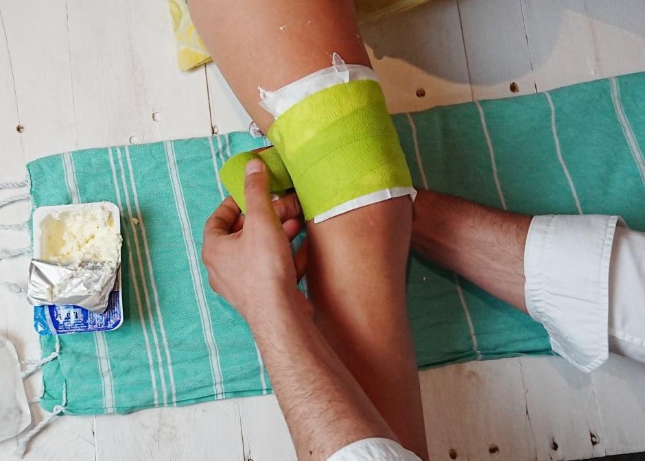 Topfenwickel bei Prellungen, Verstauchungen und Entzündungen