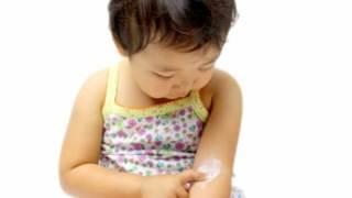 湿疹に軟膏を塗る子供の写真