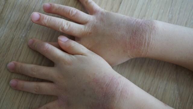 荒れている子供の手の写真