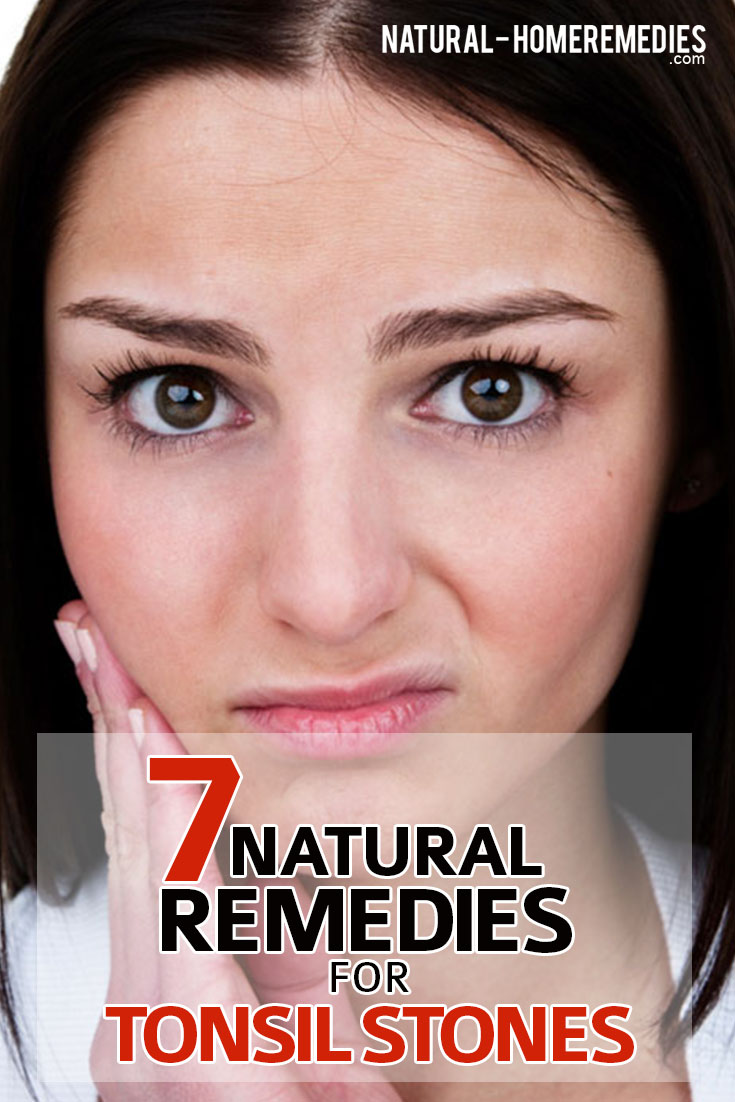 7-natural-remedies-for-tonsil-stones