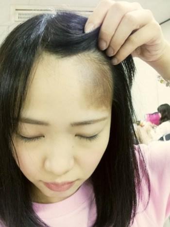 松村香織 髪の毛 抜け