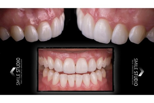 Implanty stomatologiczne, dentystyczne - implanty zębów Warszawa