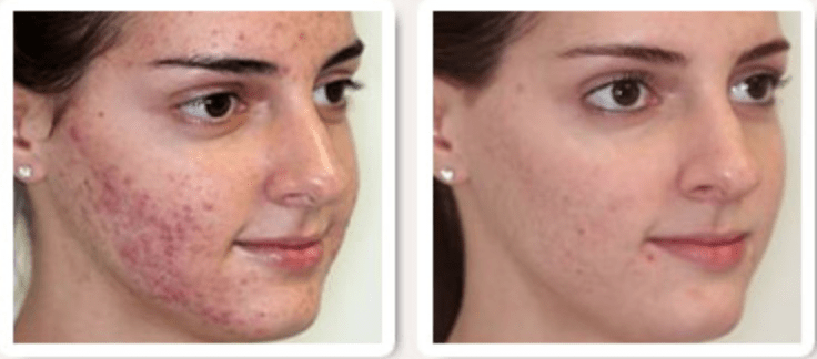 How To Get Rid Of Acne FAST! (100% Works) With Results