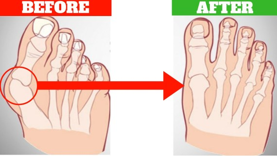 how to get rid of bunions fast