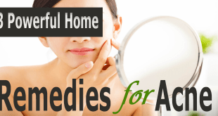 3-Powerful-Home-Remedies-for-Acne