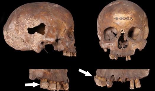 Roman adult, probable female skull