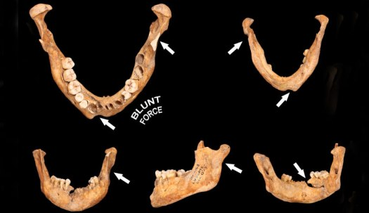 Mandible of an adult