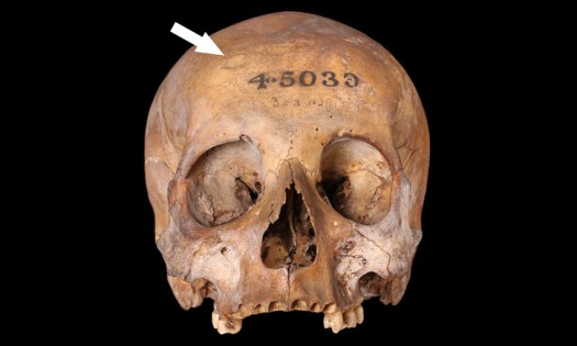 Skull with depression fracture on the right side of the frontal bone