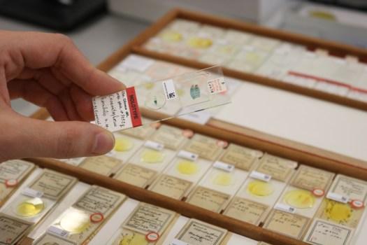 Drawer of slide specimens
