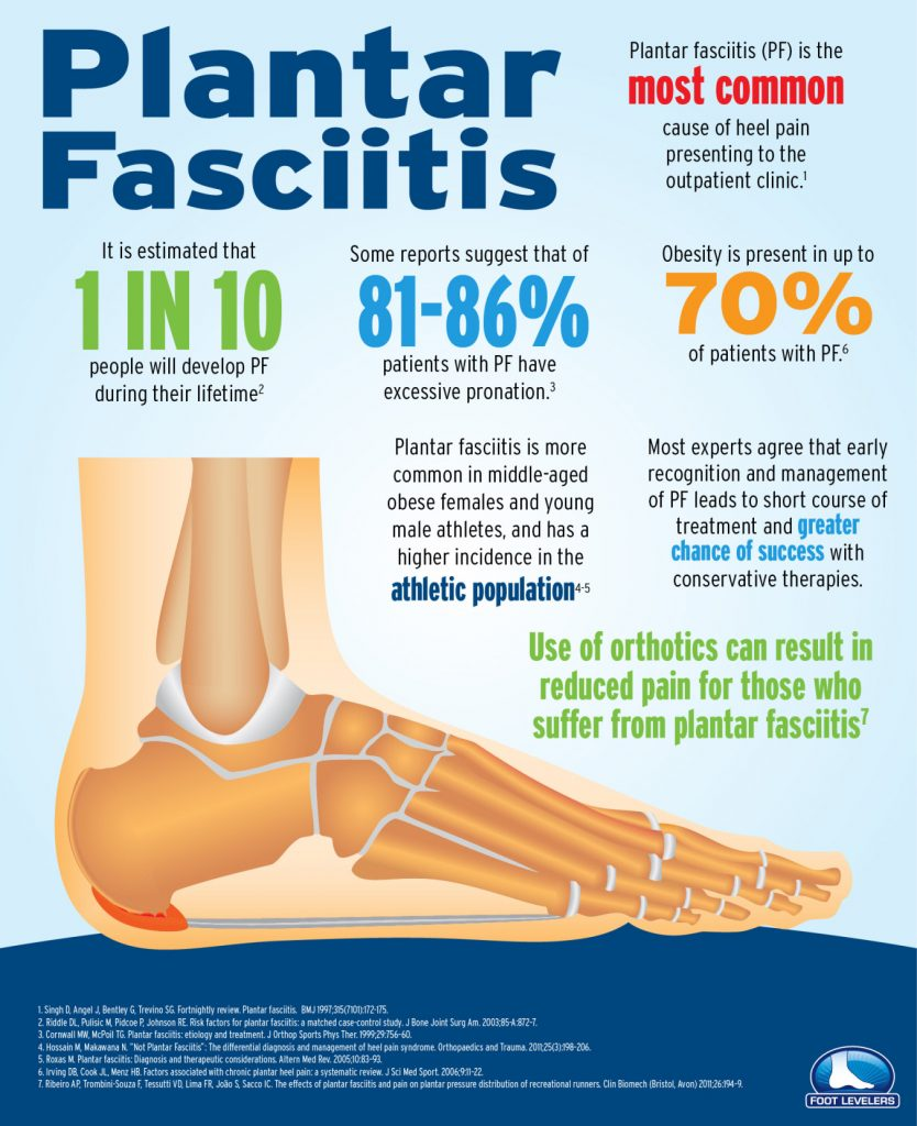 About Plantar Fascitis (infographic) 1