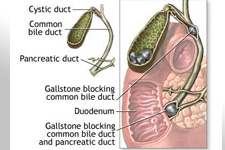 Gallstone blockage in the Gallbladder