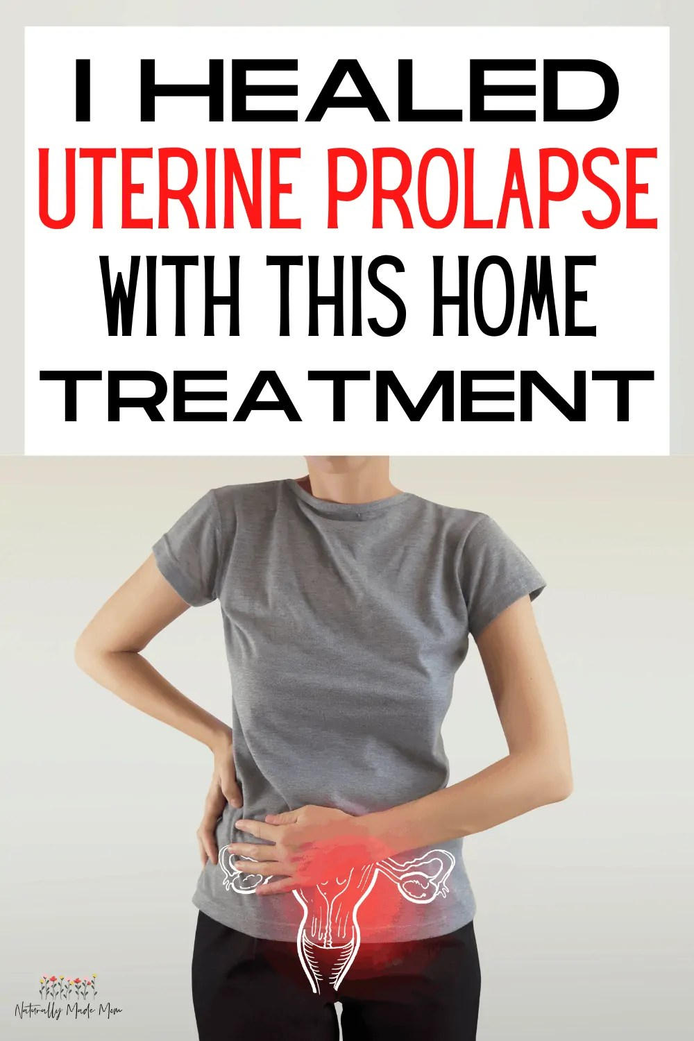 At Home Treatment for Uterine Prolapse