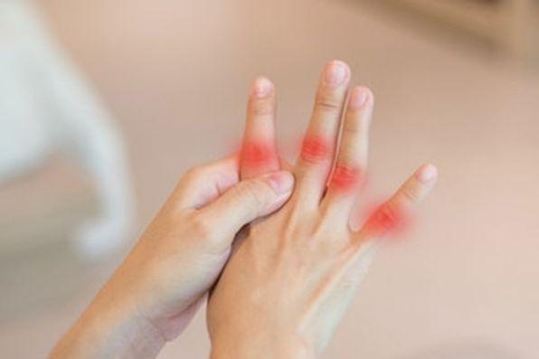 Abordar la artritis de manera precoz tiene sus ventajas