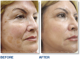 age-spot-removal-before-after.png