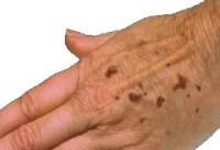 condition_age_spots.jpg