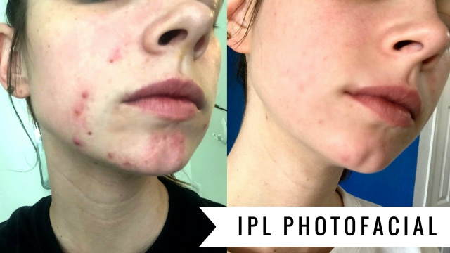 IPL Treatments Before and After - Image 2