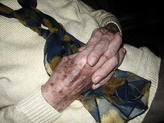 What Causes Age Spots on Hands is sunlight exposure as seen in this image.
