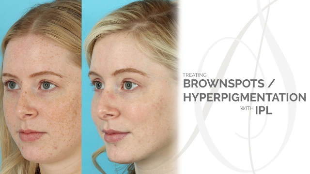 ipl for age spot removal No. 2