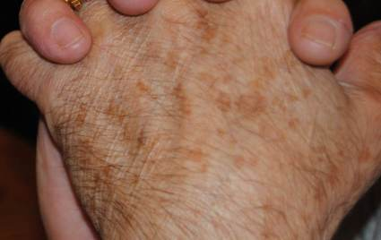Age spots on the back of a hand