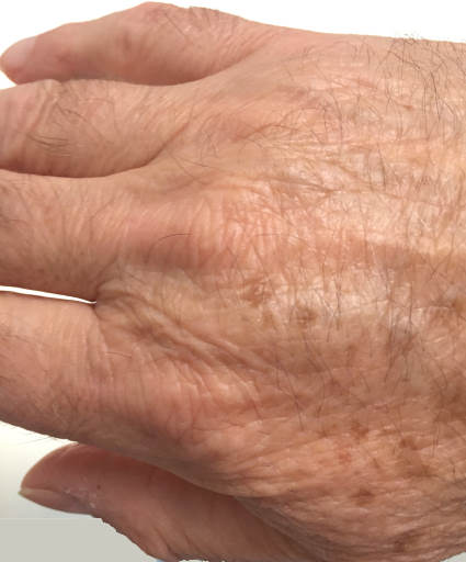 Age spots on the back of hand.
