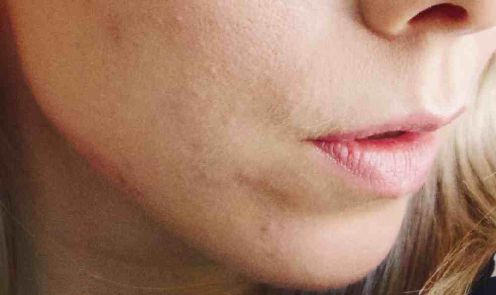 Mild Acne spots on chin.