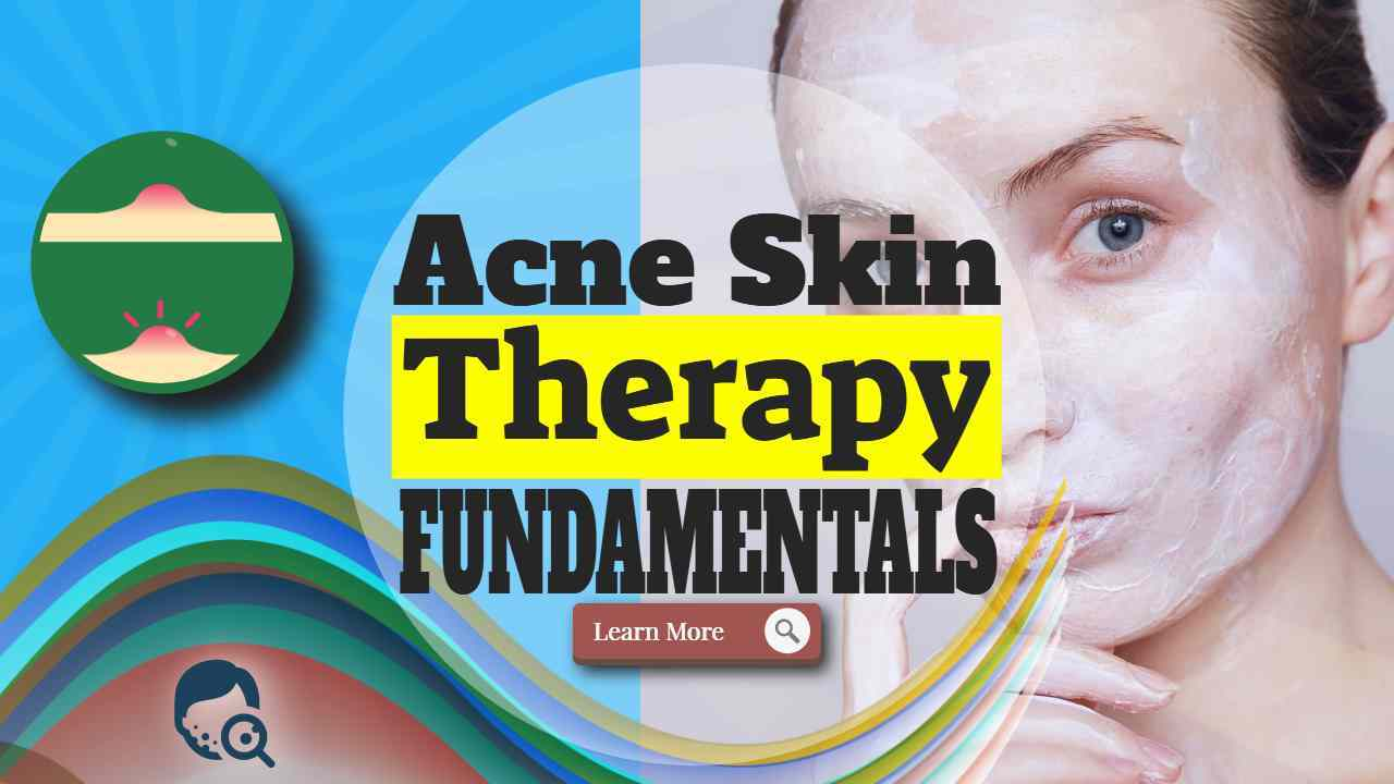 """Image text: """"Acne Skin Therapy Fundamentals""""."""