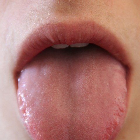 Pilzinfektion im Mund - was sie tun können!