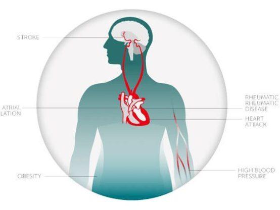 thesis on coronary heart disease